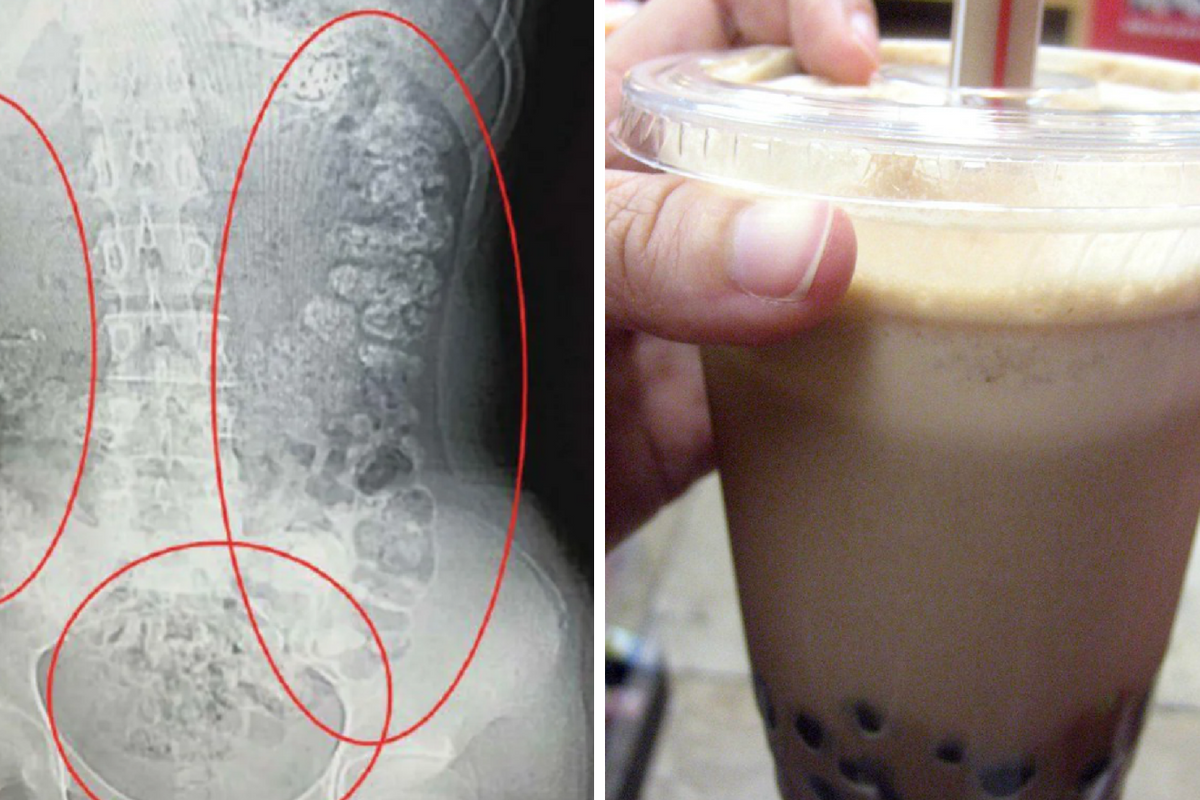 A 14-year-old went to the hospital after 100 bubble tea pearls were caught in her stomach.