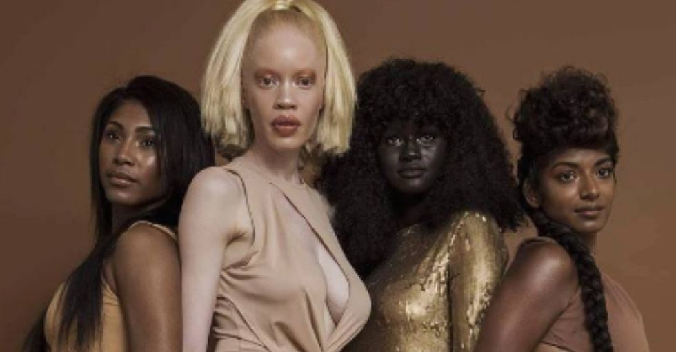 This model was bullied for her dark skin. Her story is all too familiar.