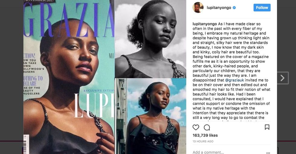 A magazine edited Lupita Nyong'o's hair on its cover, and she's really not having it.