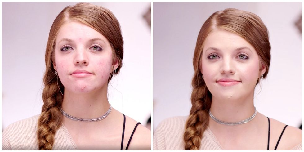 Her struggle with her acne is a lesson in developing a healthy relationship with makeup.