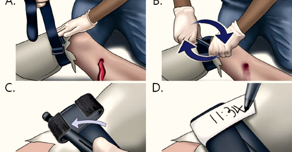 The vital reason these medical professionals want to teach you how to use a tourniquet.