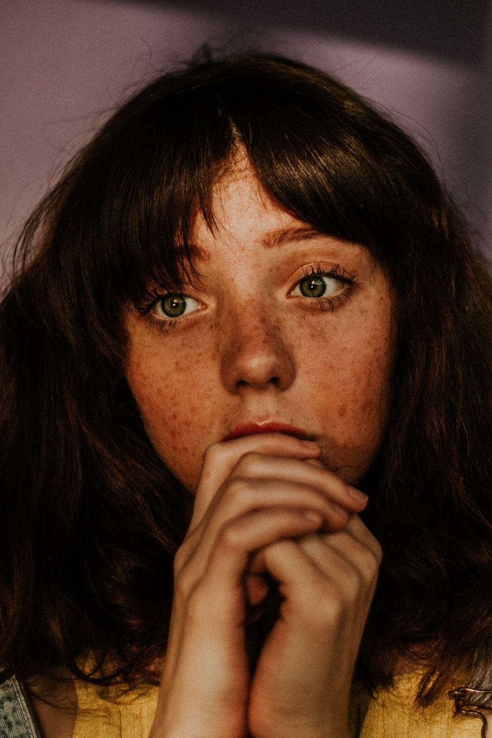 My Freckles Are Not A Beauty Trend For You To Appropriate And Immitate
