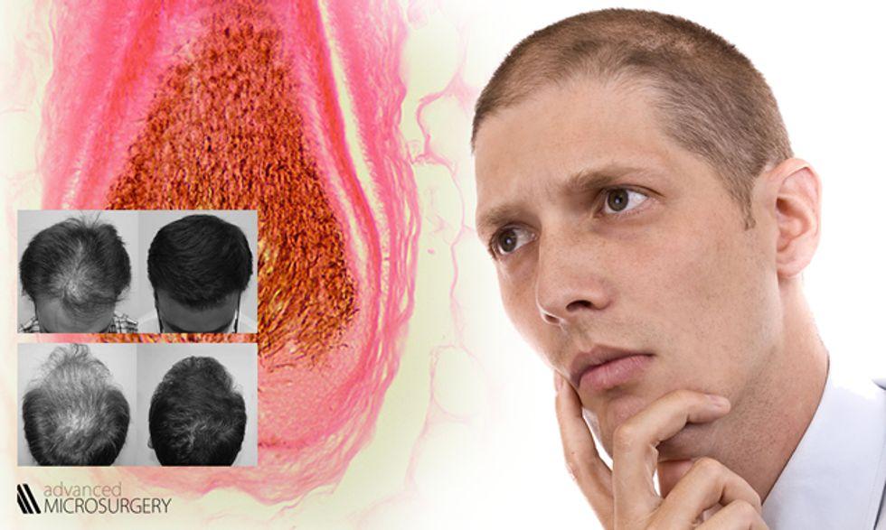 Caduta capelli e diradamento: la cura definitiva della ...