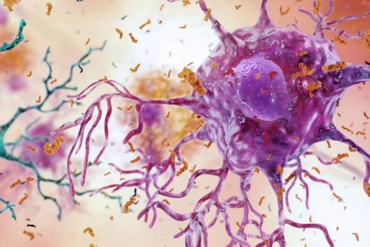Image result for A mother-and-daughter team have developed what may be the world's first Alzheimer's vaccine.