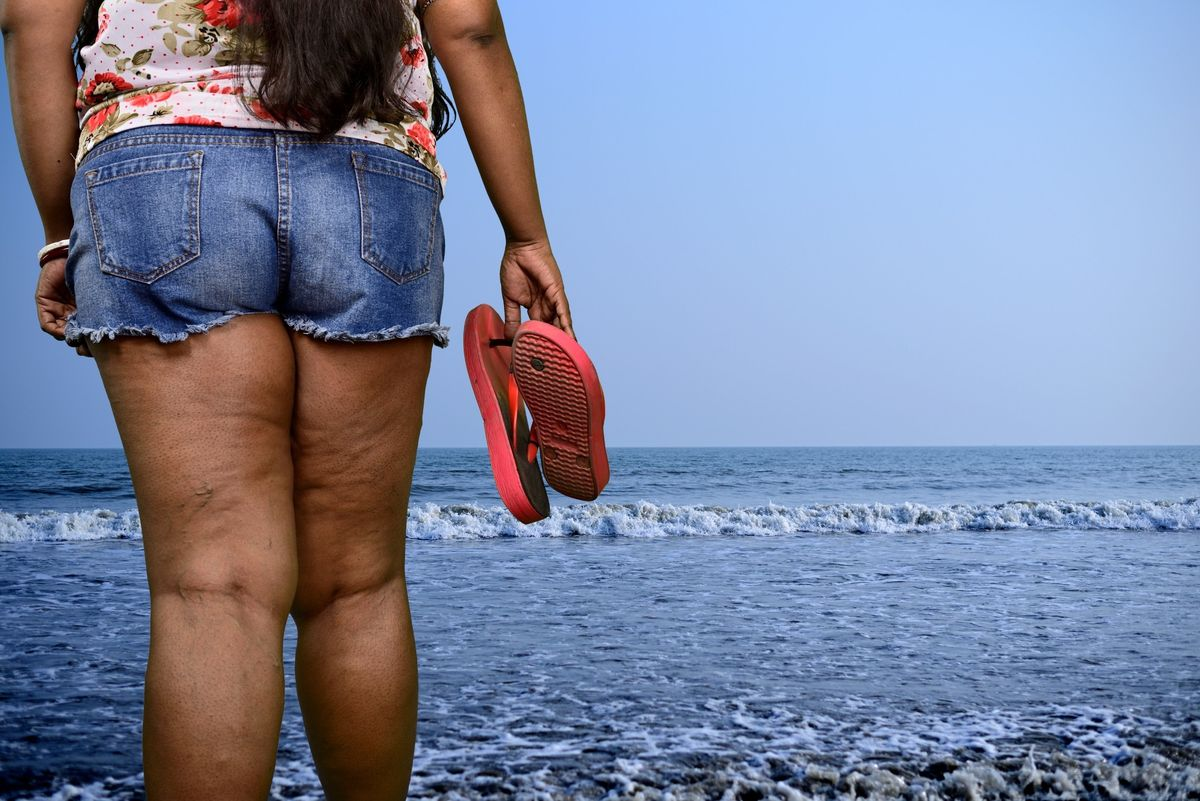 Why It Was So Painful To See A Woman Shamed For Wearing Shorts