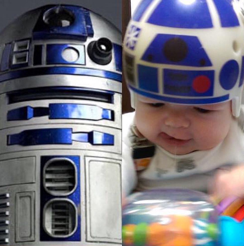Jedi Master Dad Creates Awesome Star Wars-Inspired Helmets After His Son Undergoes Skull Surgery
