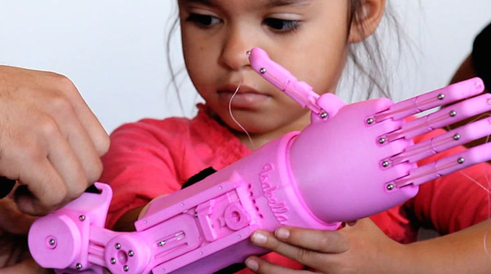 Designers Create Custom 3D-Printed Arm for Adorable 5-Year-Old