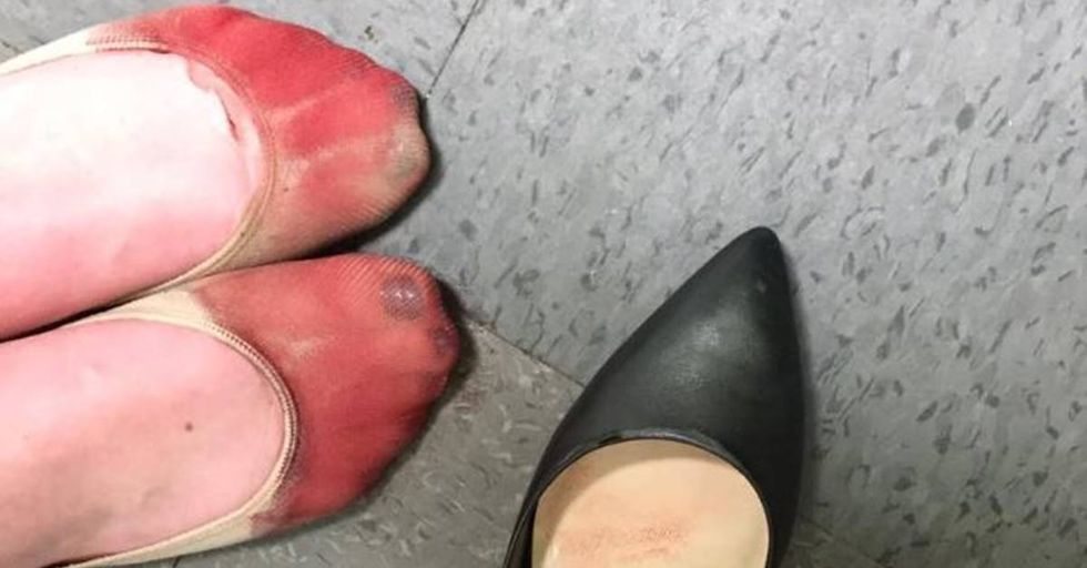 Server forced to wear heels on the job shares photos of her bloody feet.