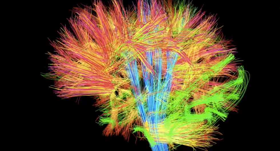 Stunning New Map Of The Brain Shows 97 Previously Unknown Regions