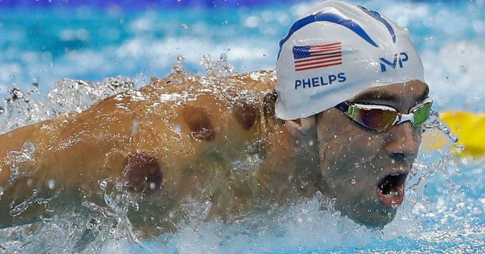 Why Are Michael Phelps And Other Olympians Cupping?