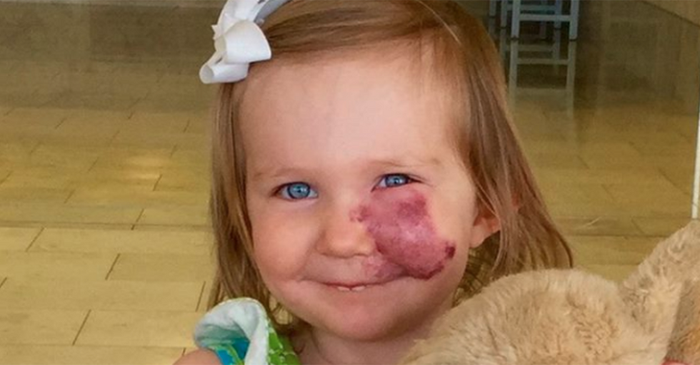 A 2-year-old saw people whispering about her birthmark and responded in the most adult way possible.