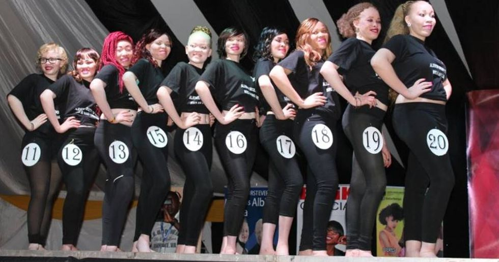 Kenya Holds The World's First Albino Beauty Pageant