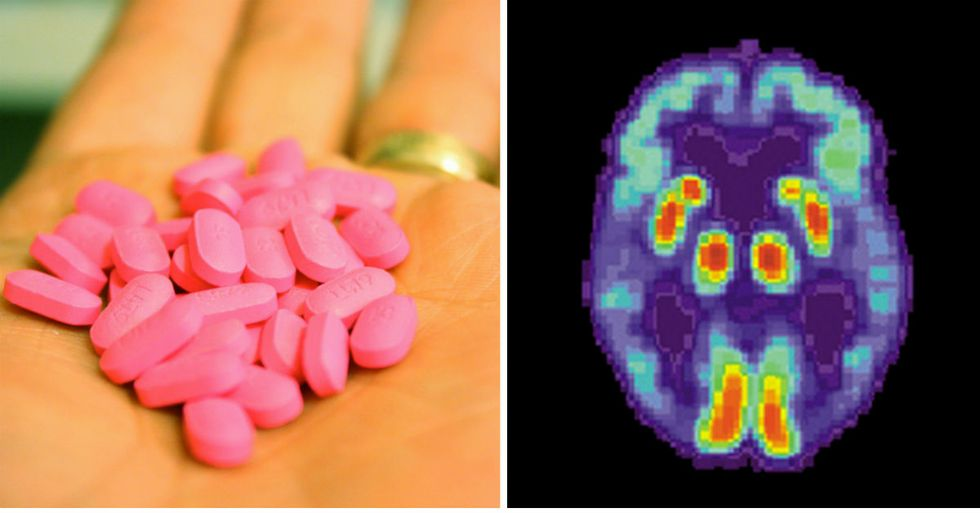 Studies Link Long-Term Use Of Allergy Medicine To Mental Illness