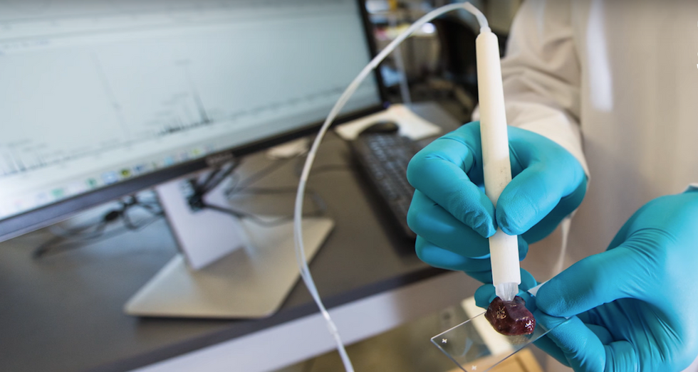 Can A Simple Pen Help Doctors Diagnose Cancer?