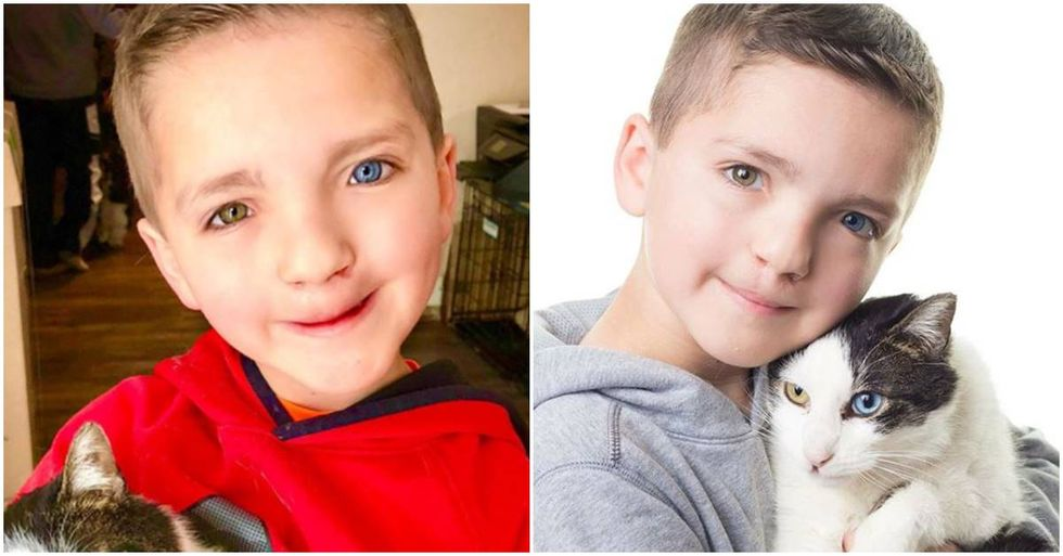Boy With Two Rare Conditions Rescued A Cat That's Just Like Him