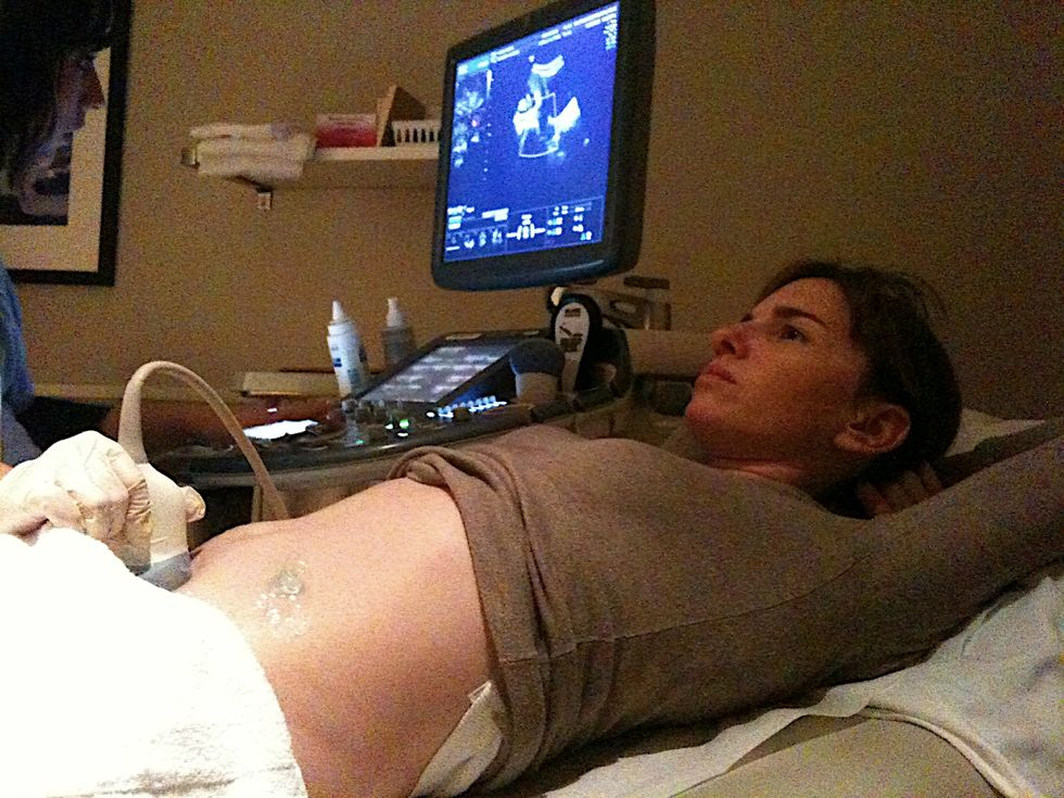 Reducing False Positives in Prenatal Genetic Screenings