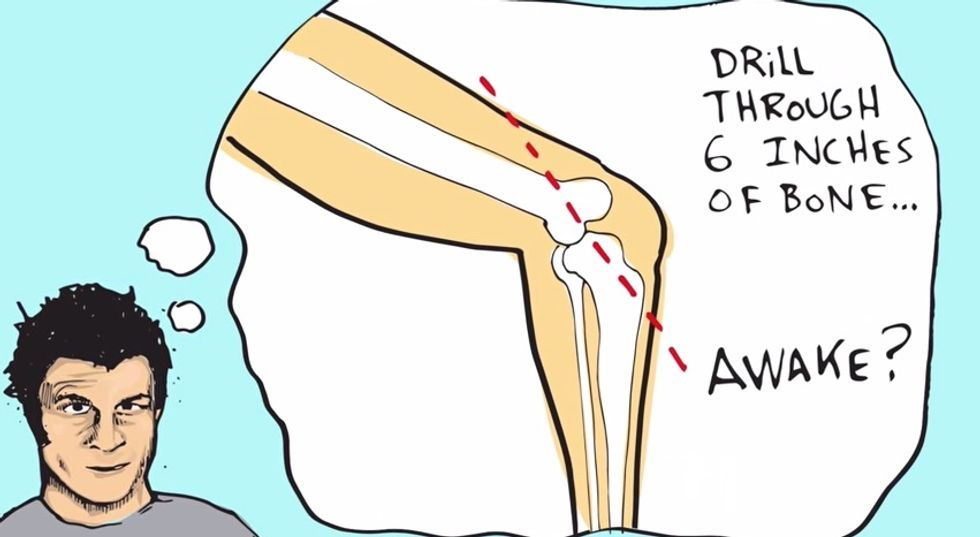 BMX Superstar Mat Hoffman's Animated Tale Of Anesthesia-Free Experimental Surgery