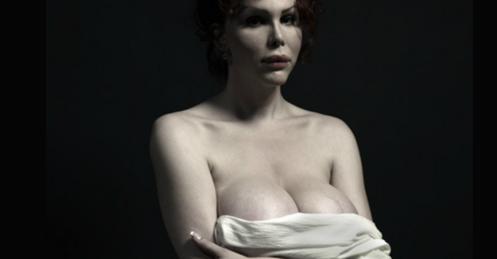 12 Radically Surgically-Altered Models That Explore Our New Concept Of Beauty [NSFW]