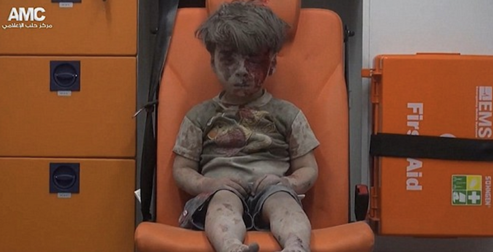 Boy Who Survived Airstrike Shows Us Everything Awful About War