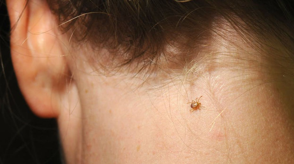 Ticks Spread Plenty More for You to Worry About Beyond Lyme Disease