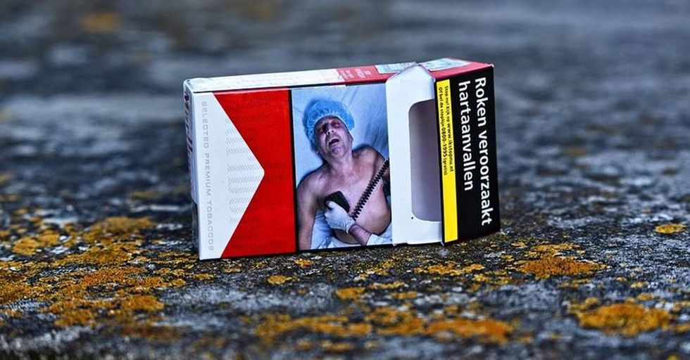 Man is furious after seeing a picture of his amputated leg on a tobacco warning label.