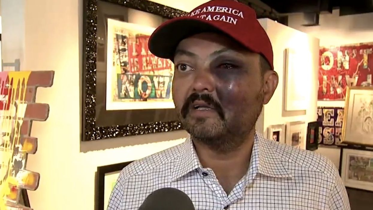 MAGA hat-wearing art gallery owner says teens beat him up on New York City street, yelled 'f*** Trump!'