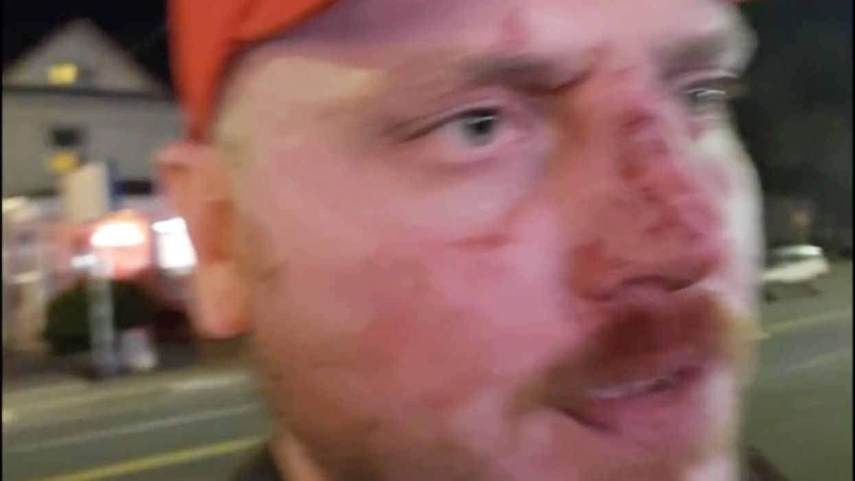 MAGA hat-wearing man says man and woman beat him outside of a Portland bar