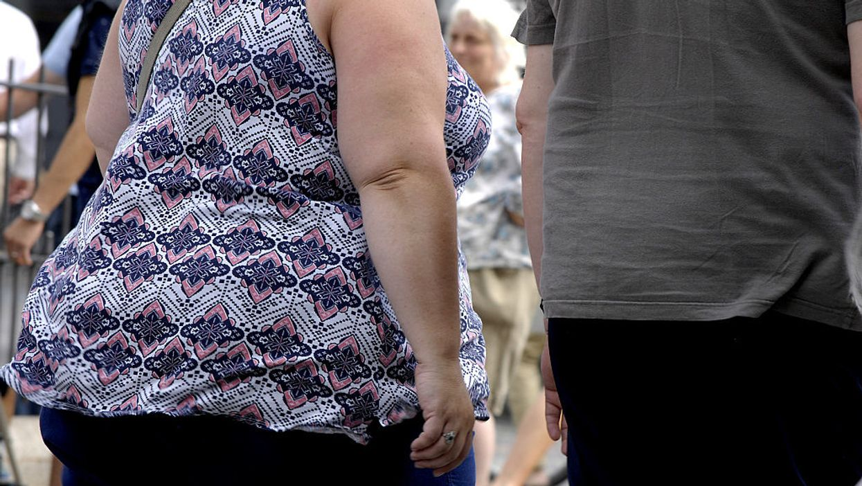 Obesity is the leading cause of death in America. When will we talk about it?