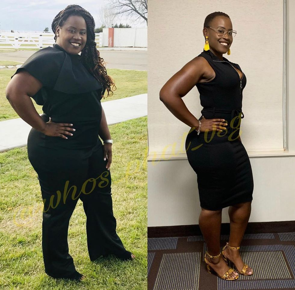 Why I Decided To Have Weight Loss Surgery Xonecole Women S Interest Love Wellness Beauty
