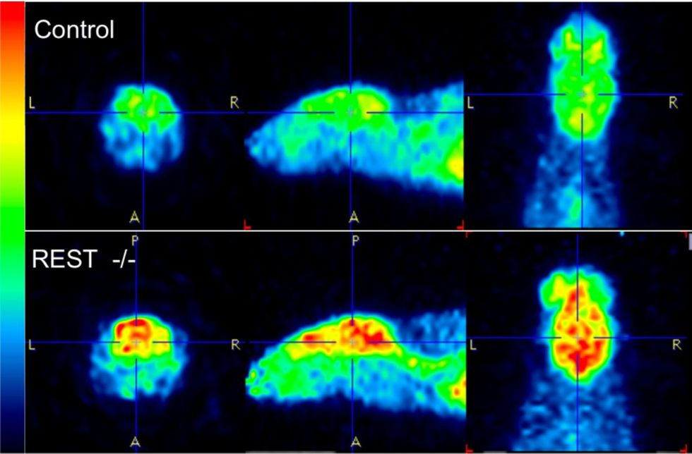 Neural activity in mice