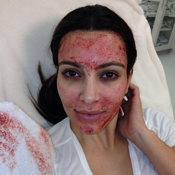 Kim Kardashian Is Suing the Vampire Facials Inventor