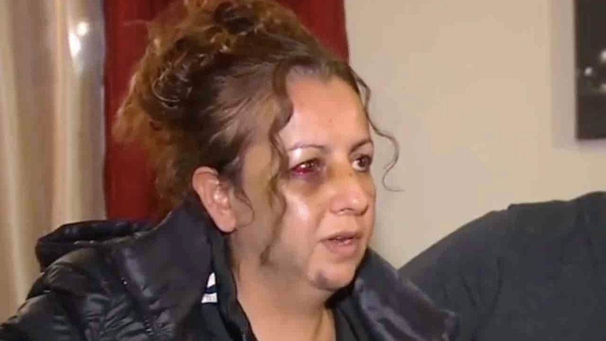 Mom beaten to a pulp by teen girls outside HS. She was there to complain about daughter's bullies — one of whom allegedly was part of the attack.