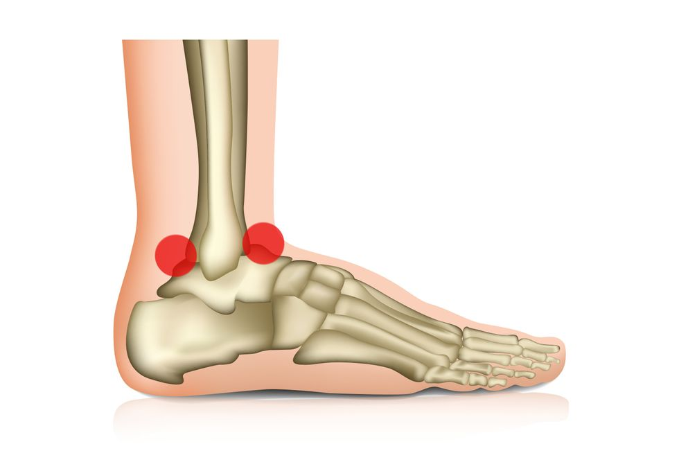 Digital drawing of a foot's bones, with red dots on the front and back of the ankle bone.