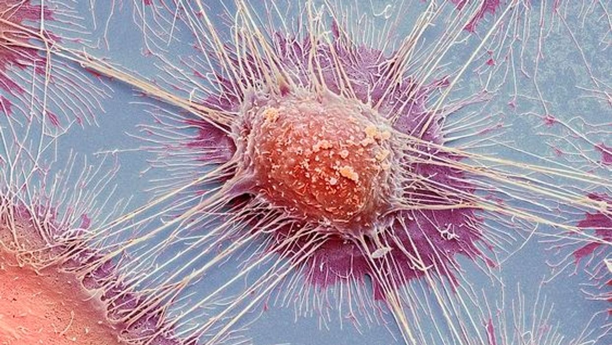 Researchers discover dozens of existing drugs with anti-cancer properties