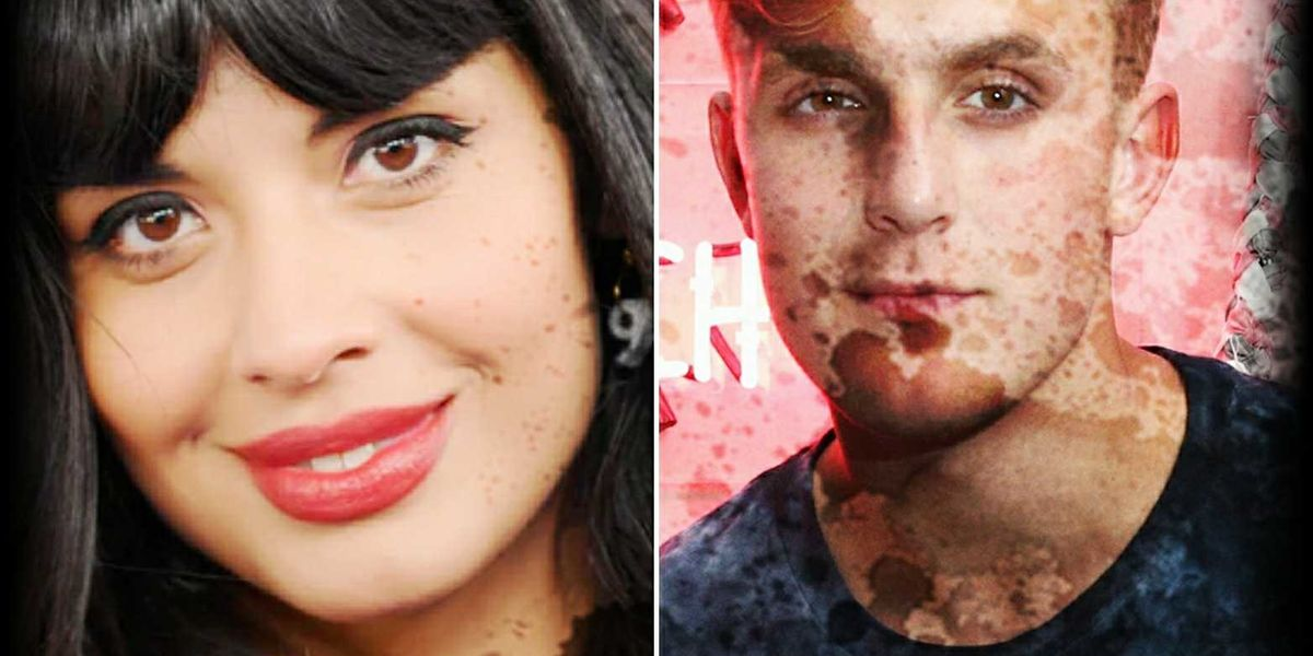 Invisible Illness in Pop Culture: What Do Jameela Jamil and Jake Paul Have in Common?
