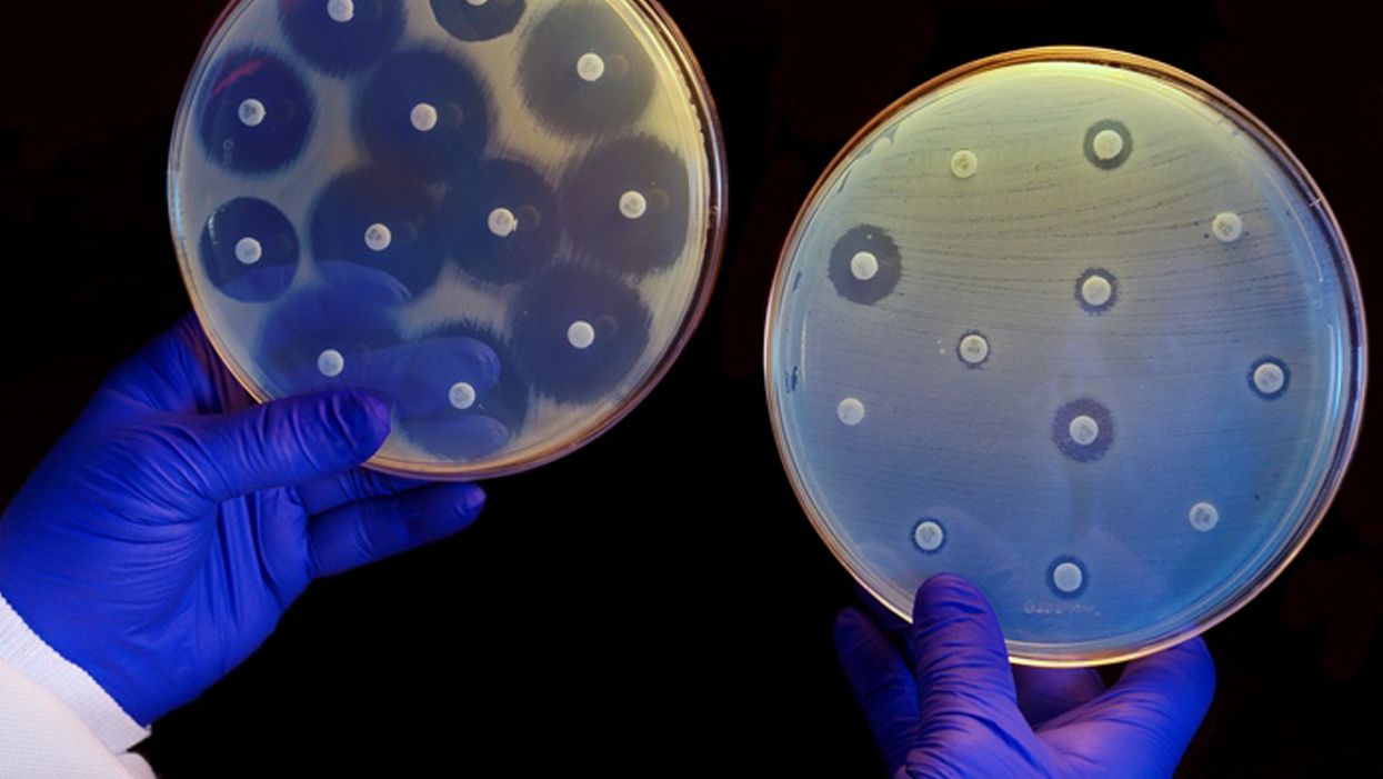 Artificial intelligence makes new antibiotic that can combat drug-resistant bacteria