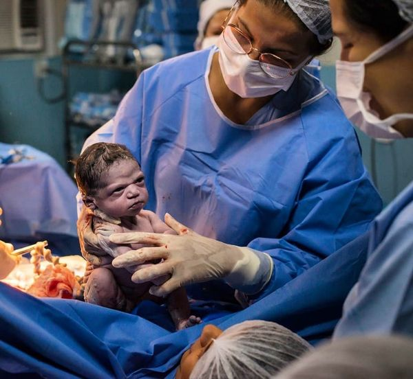 Image result for This baby's viral birth photo is a #mood