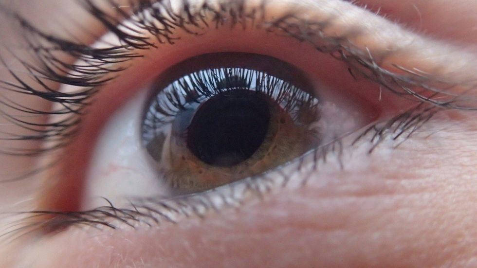 Can Glaucoma Be Cured Either Way These Supplements Can Help