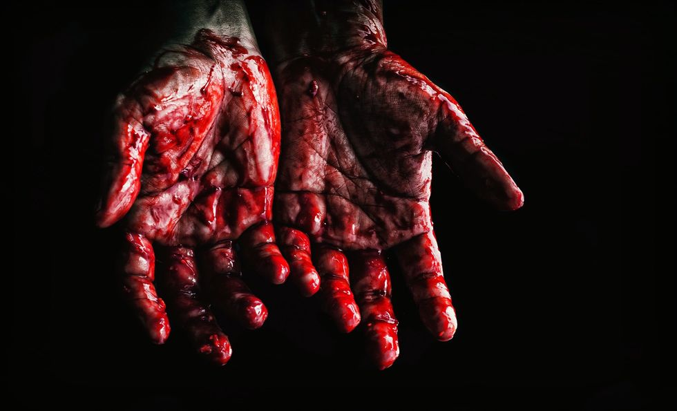 https://www.pexels.com/photo/person-s-hands-covered-with-blood-673862/