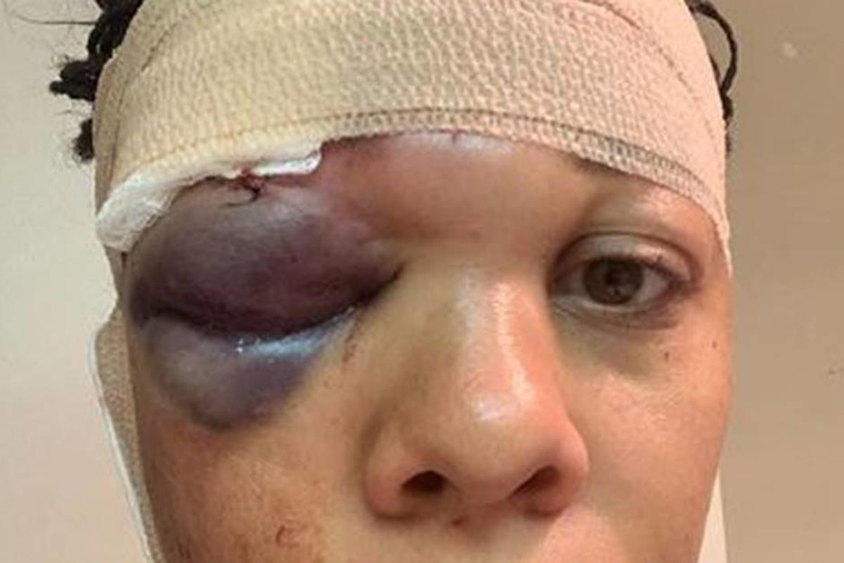 She was peaceful. The demonstration was peaceful. Police still fractured her skull.