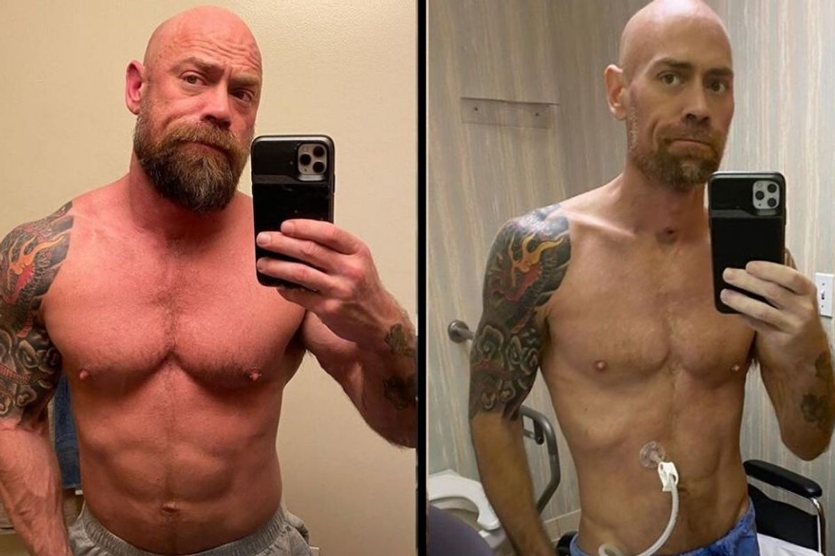 Nurse's photos show the drastic effects of his 8-week hospitalization with COVID-19