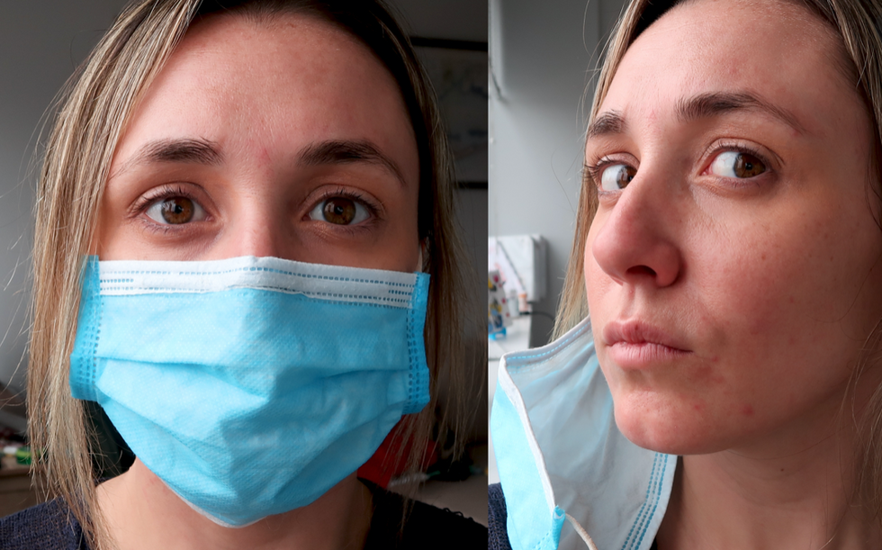 """""""Avoid Wearing Makeup"""" And 5 Other Tips For Those Struggling With 'Maskne' During COVID-19"""