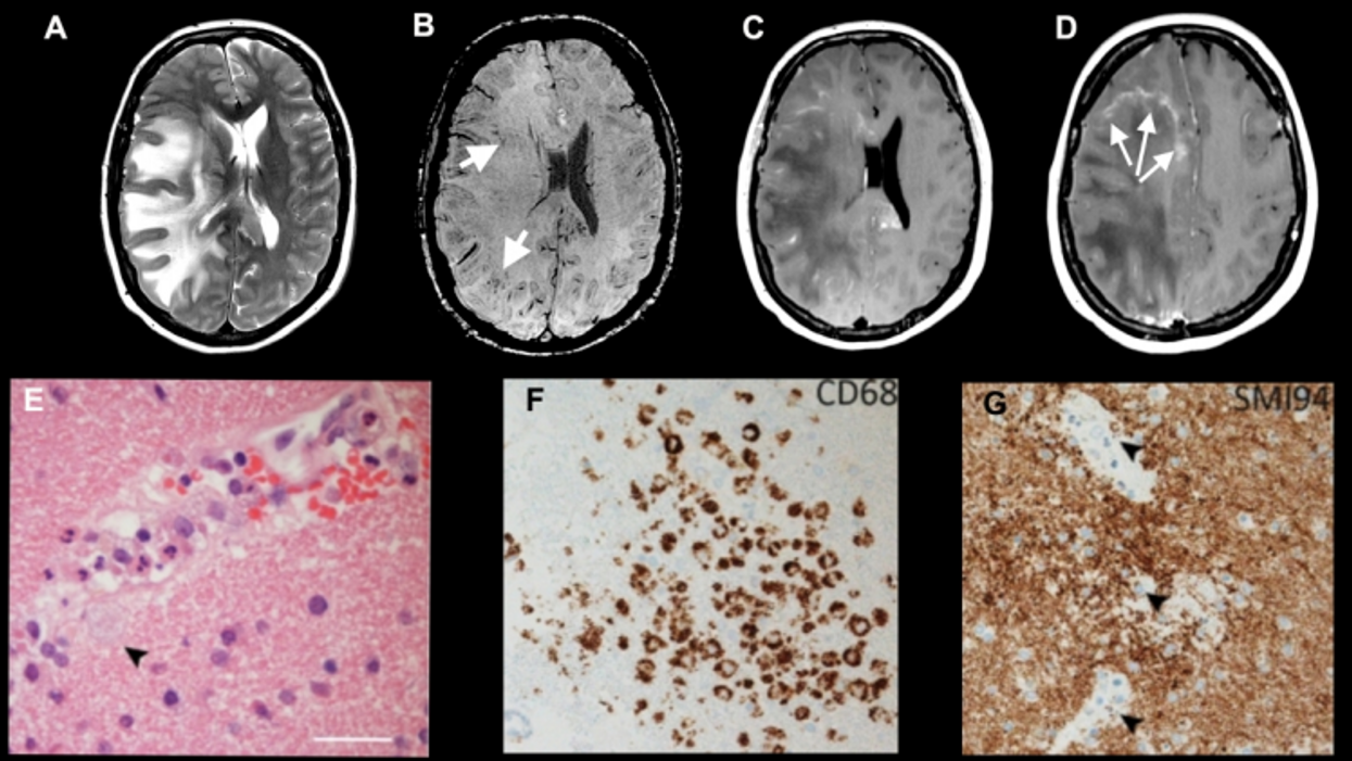 COVID-19 brain study to explore long-term effects of the virus