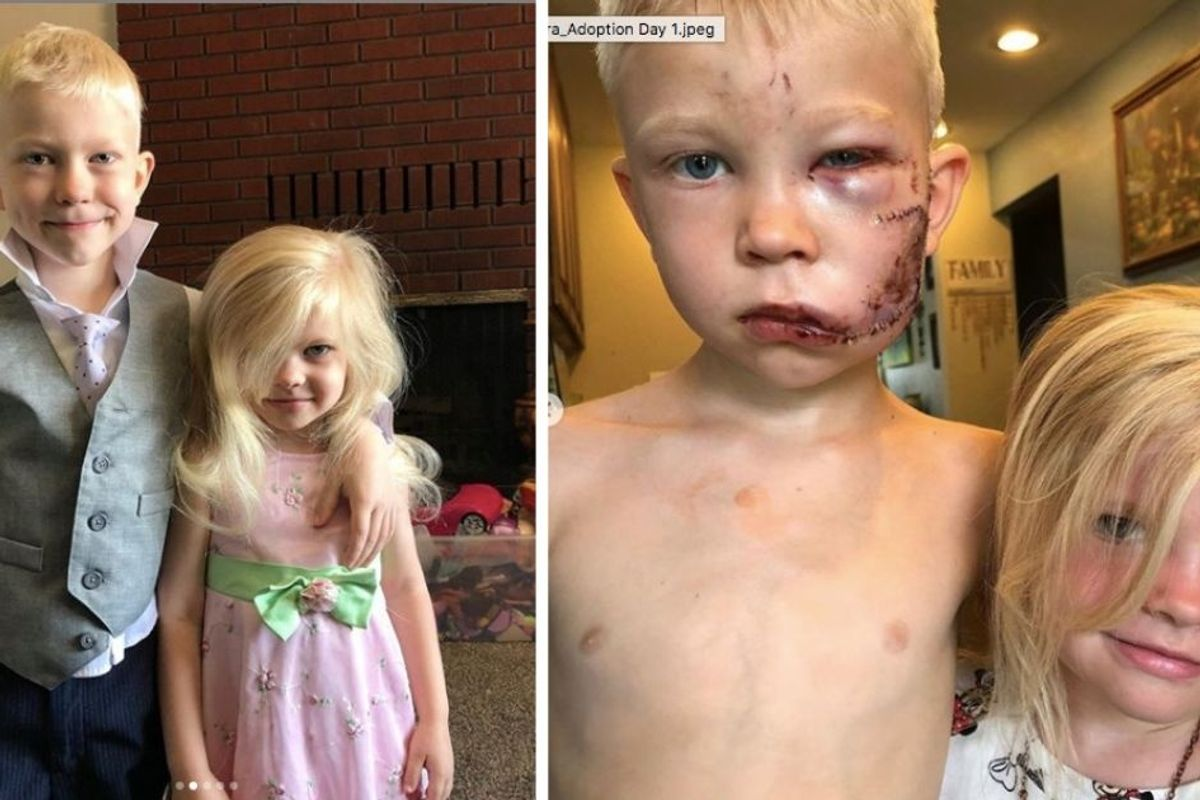 6-year-old hero Bridger Walker selflessly saved his little sister from a dog attack