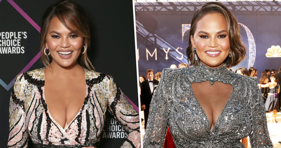 Chrissy Teigen Has Had Her Breast Implants Removed