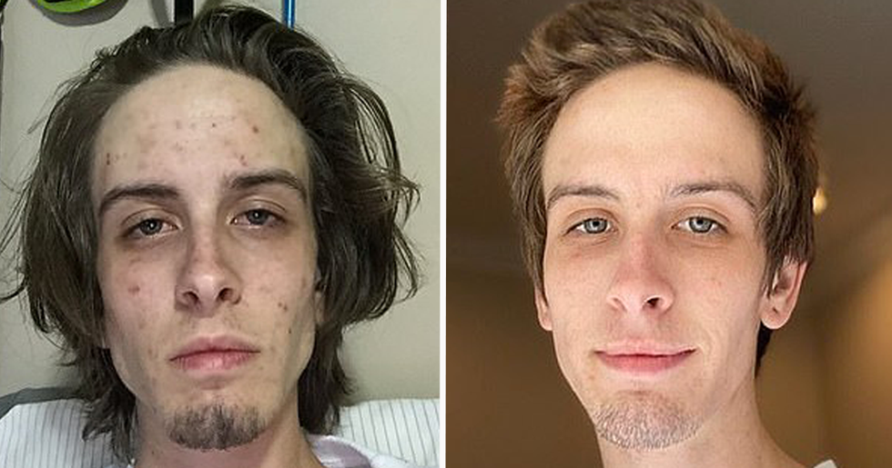 Former Drug Addict Shares Photos of His Incredible Transformation Since Getting Clean