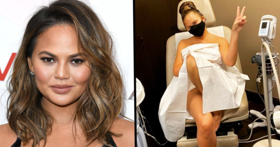 Chrissy Teigen Is Being Praised for Her Super Honest Post and Caption About Her Latest Pap Smear