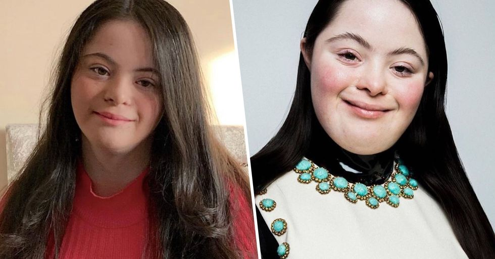 Teen Becomes First Model With Down's Syndrome to Pose for Gucci