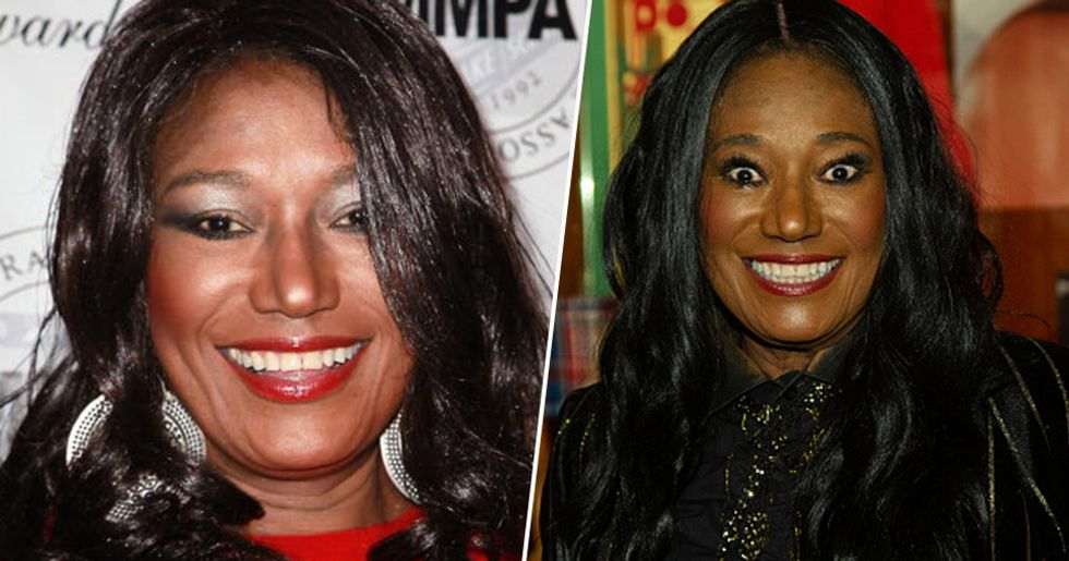 Bonnie Pointer of The Pointer Sisters Cause of Death Revealed