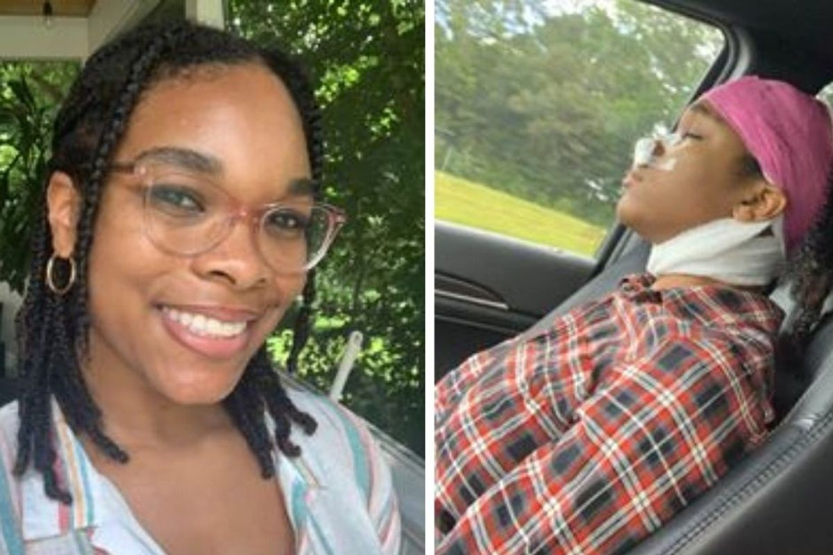A Black woman came out of surgery with more braids than before. Here's why that matters.